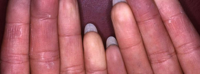 Comment soigner syndrome raynaud?